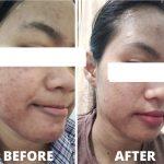 testi pemakaian skin care paket acne basic